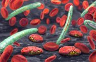 New Biomarker for Malaria Detection