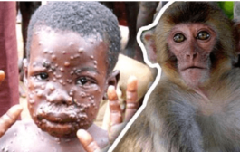 The case of monkeypox in singapore, what is monkeypox virus